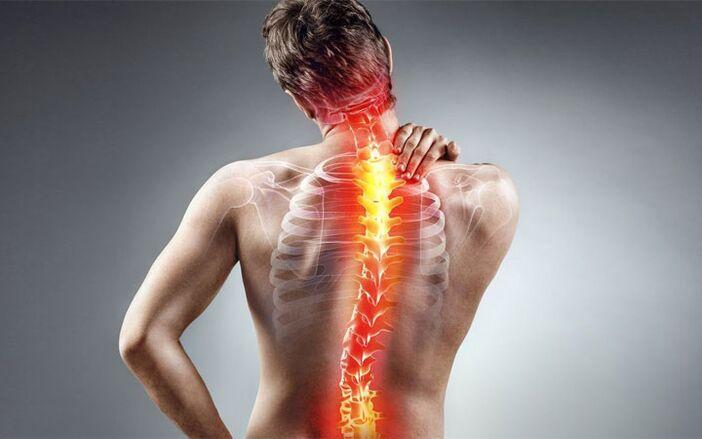 csukló fájdalom a hát mentén)